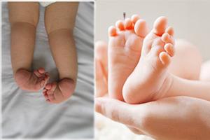 Косолапость у ребенка: как лечить?