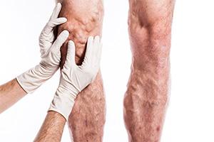 Может ли быть варикоз у мужчин? Подвержены ли варикозу мужчины?