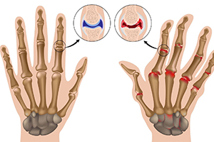 Артроз и артрит - в чем разница? Методы диагностики и лечения