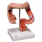 Модель заболевания кишечника