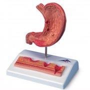 Анатомическая модель желудка с язвами